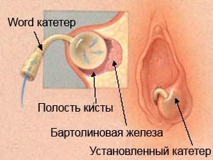 word kateter